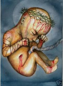 jesus-crucified-in-the-womb